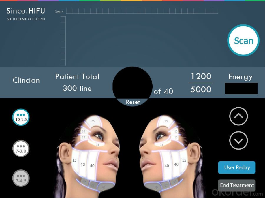 2015 Newest High Intensity Focused Ultrasound Hifu